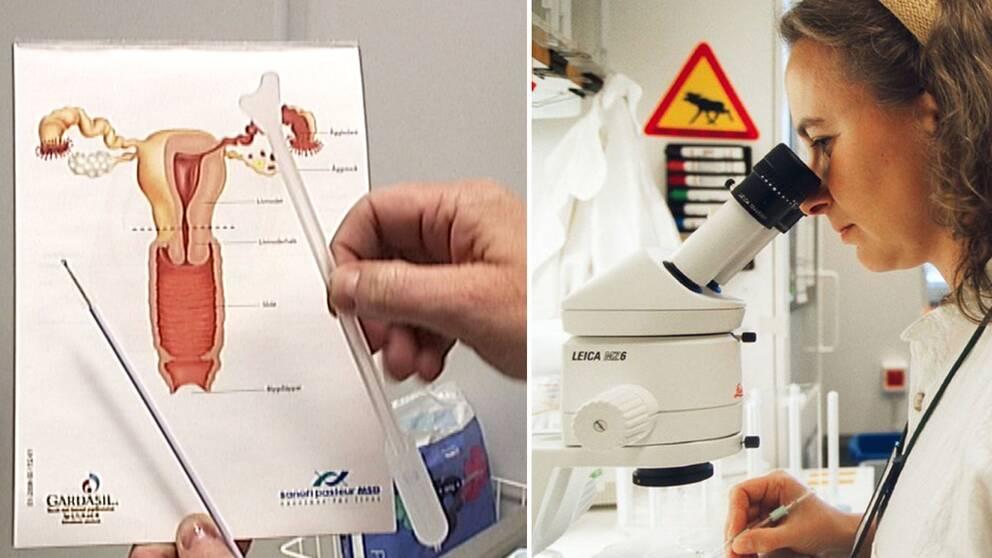 En bild på verktyg som används vid en cellprovtagning samt en läkare som analyserar prover i ett mikroskop.