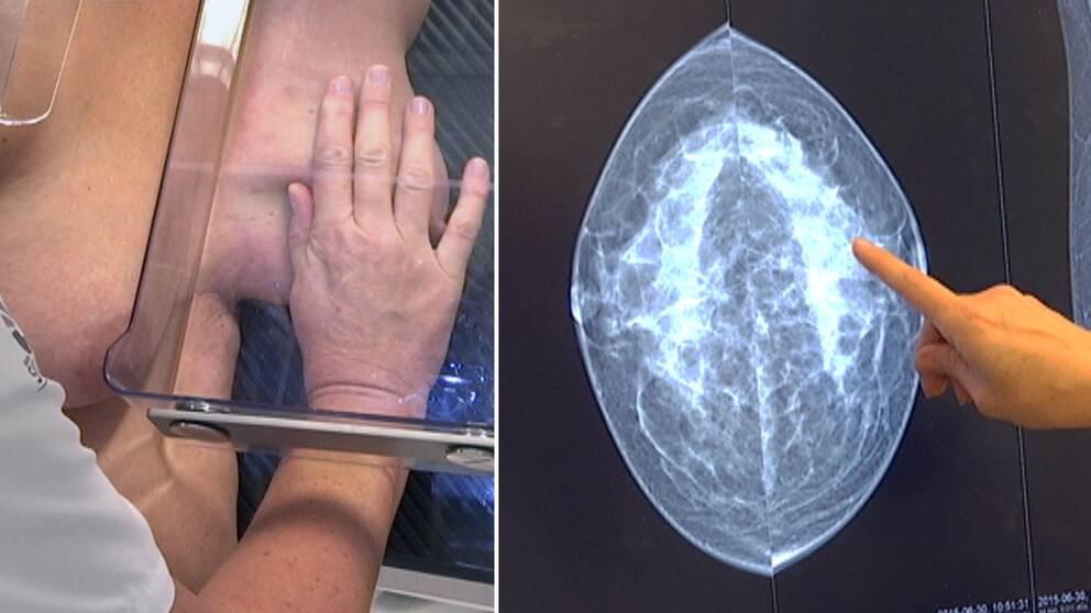 Forskare från Lunds universitet hoppas minska smärtan vid mammografiscreening, så fler kvinnor återkommer.