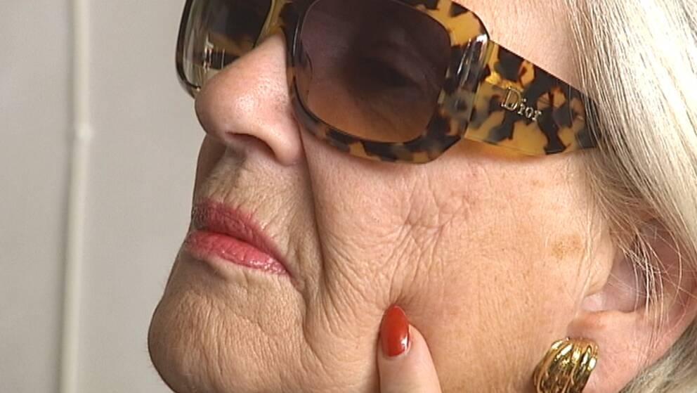 Margareta Nystrand visar upp ärren efter den allergiska reaktionen.