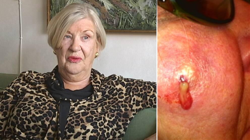 Margareta Nystrand drabbas av en allergisk reaktion efter ingreppet