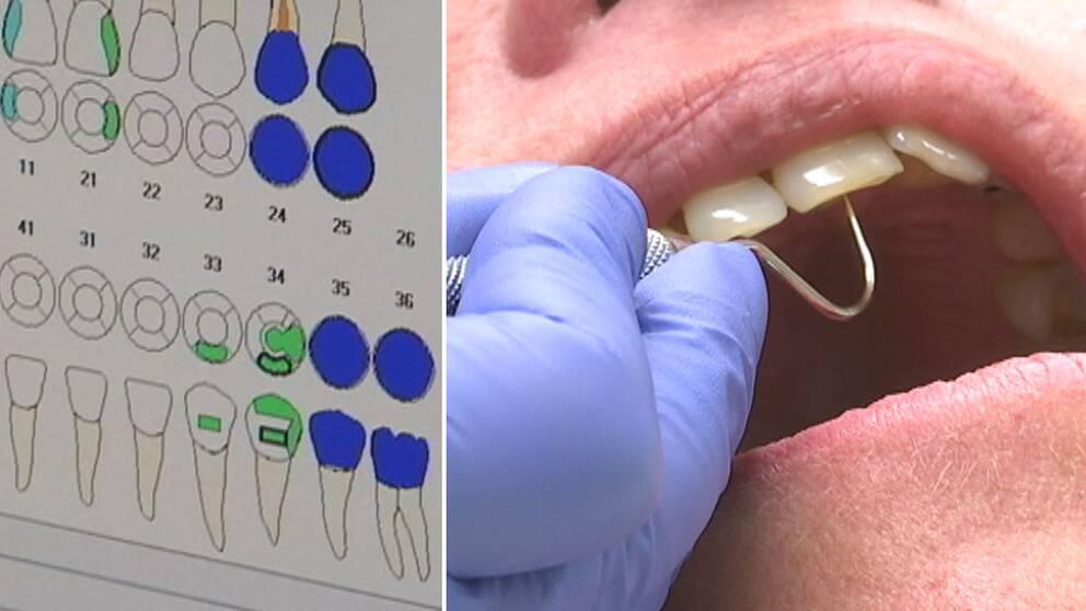 Amalgam ska bort fran tandvarden