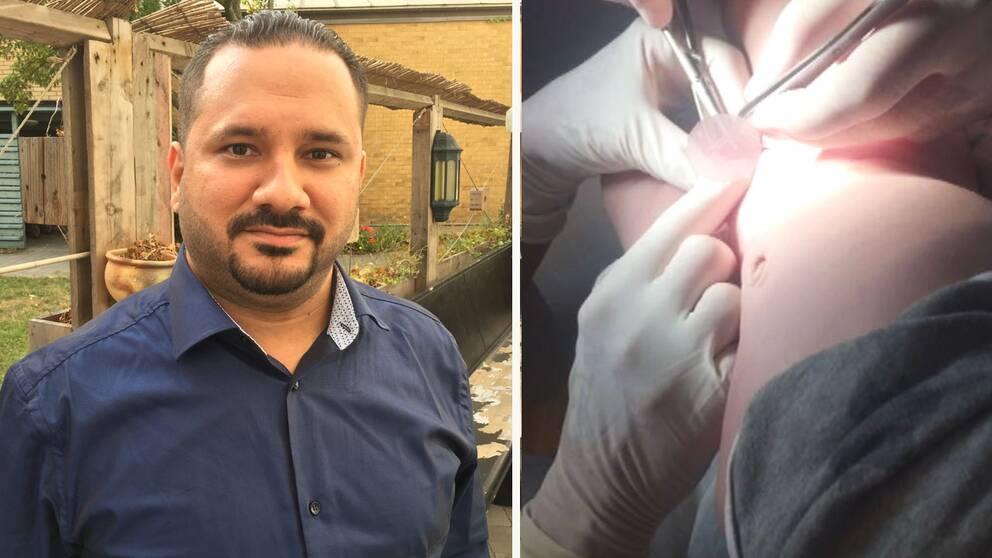 omskärelse klinik skåne