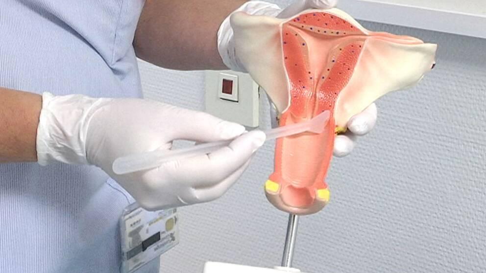 livmoder cellprov gynekolog barnmorska