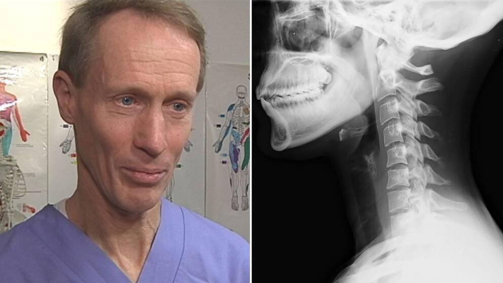 läkaren och smärtforskaren Bo Christer Bertilson samt röntgenbild av en nacke.