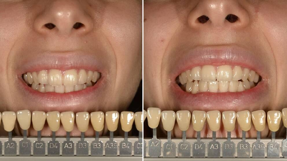 opalescence tandkräm pris