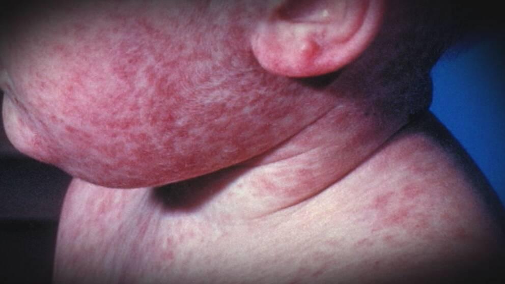 Käke och kind på litet barn som har röda utslag i hela ansiktet, halsen och på örat.