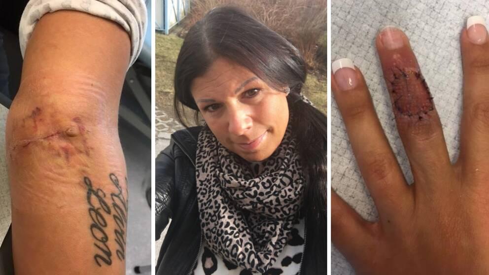 ta bort tatuering varberg