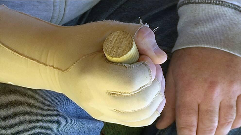 Skadad hand