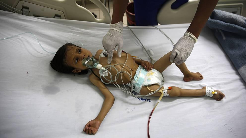 En sjuksköterska vårdar ett undernärt barn på al-Sabeen-sjukhuset i Sanaa, Jemen