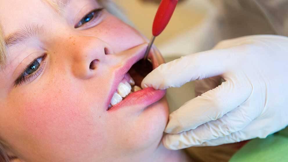 Barn som har missfärgningar eller tandskador kommer inte att kunna bleka tänderna hos tandläkaren, enligt ett EU-direktiv.