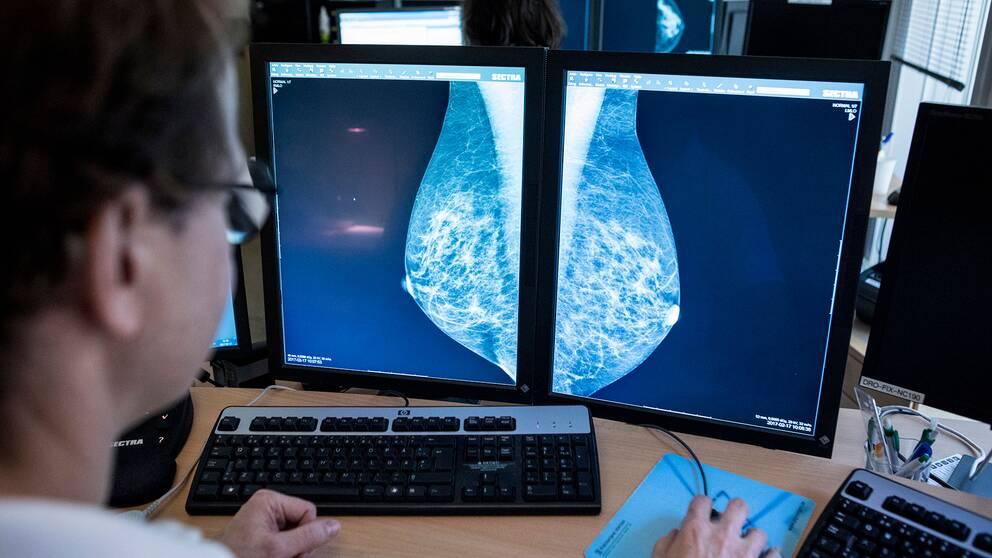 Hur man börjar dejta efter bröst Cancer