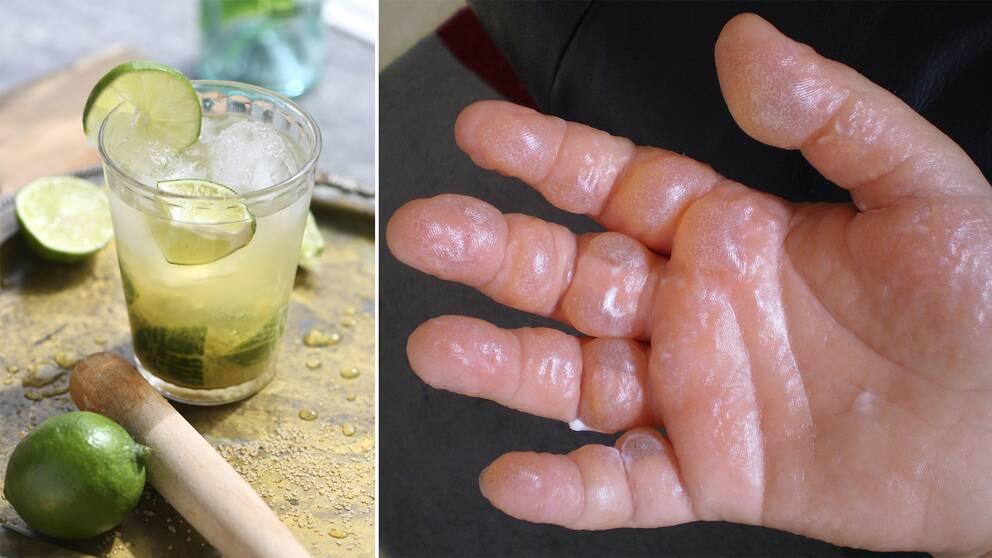 Drinken caipirinha med lime, råsocker, cachaça eller ljus rom och is. Hand med phytophotodermatitis.