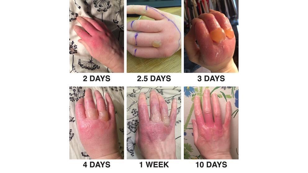 Olika faser av utslagen på handen.