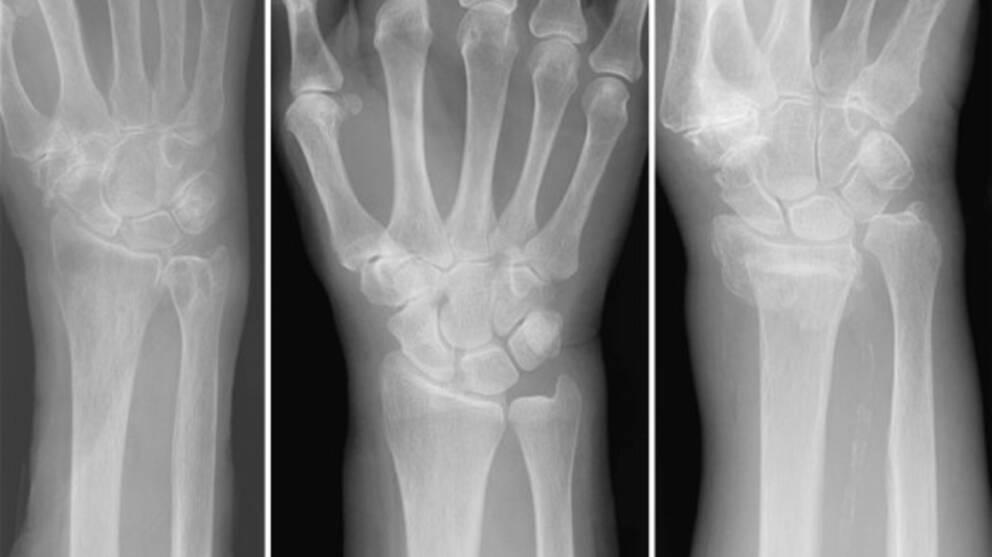 Röntgenbild som visar tre bilder varav en har en allvarlig fraktur.