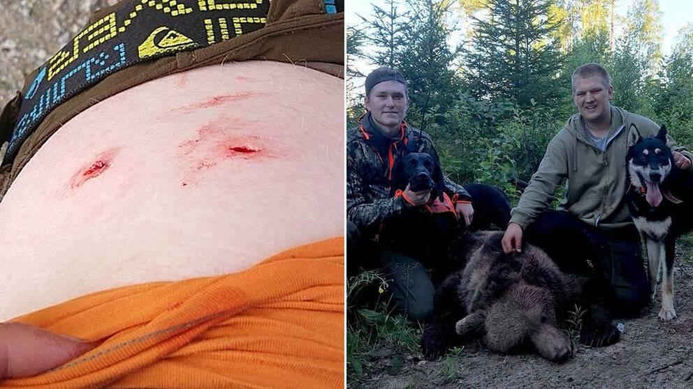 Bitmärken på Axel Wallbergs höft efter mötet med björnen.