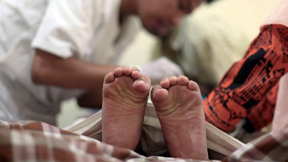 En pojke i Jakarta, Indonesien, kniper med tårna i smärta under en omskärelse.