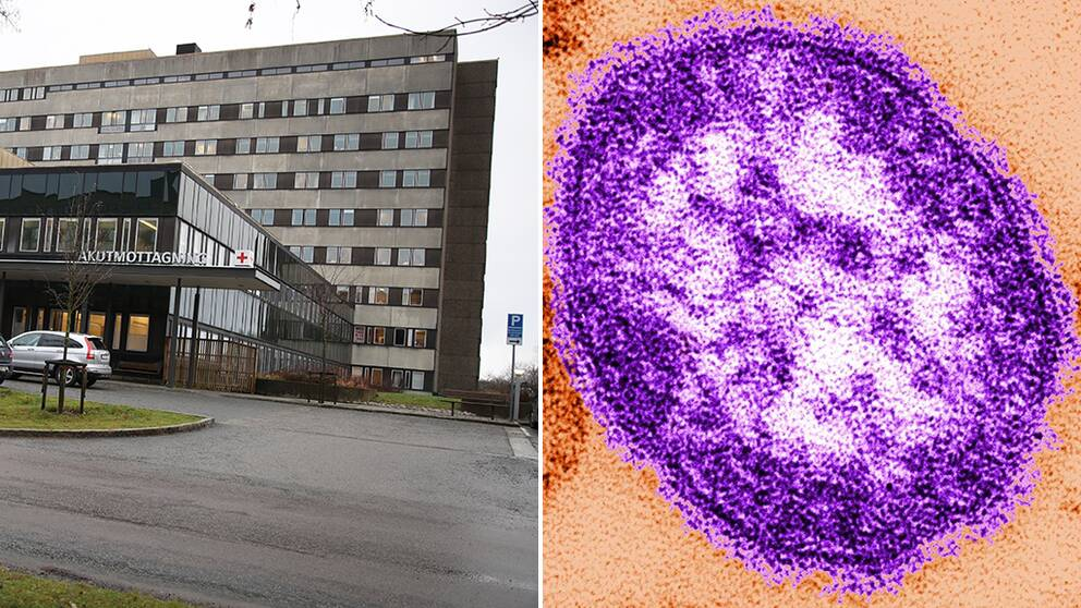 mässlingvirus och Östra sjukhuset i Göteborg