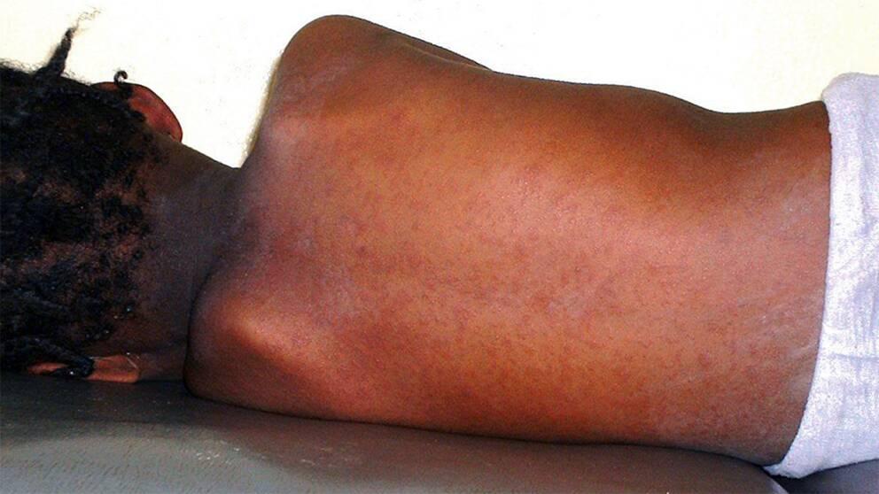 Ett mässlingsmittat barns rygg