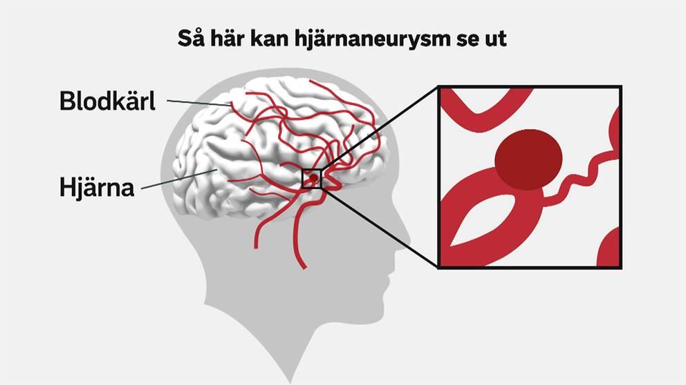 vad är blodkärl