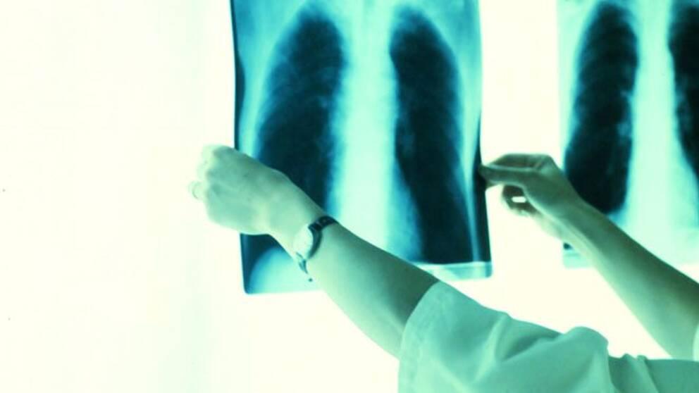 Röntgenbilder på lungor