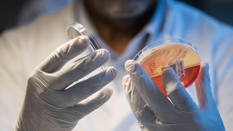 Läkare tittar på bakterieodling