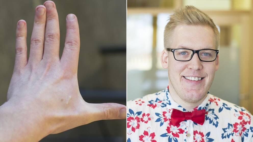 30-åriga Freddy Grip från Stockholm har implanterat två mikrochip, en i varje hand, sedan förra sommaren.