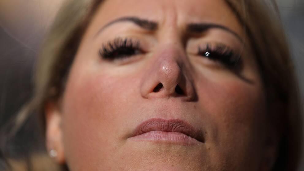 Cecilias näsa deformerades av operationen