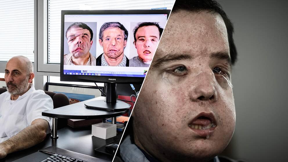 Till vänster sitter kirurgen som utfört Jérome Hamons senaste operation. I mitten av bilden syns en datorskärm som visar alla Jéromes tre olika ansikten. Till höger är en bild på Jérome som han ser ut idag.