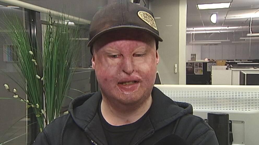 en man med läkta men kraftiga brännskador i ansiktet
