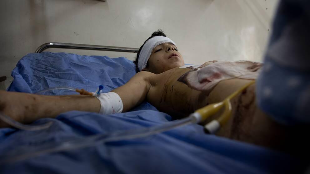 En splitterskadad pojke ligger på en sjukhussäng i Aleppo.