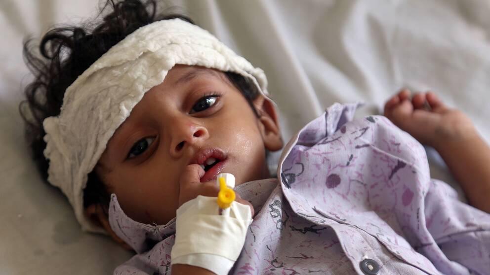 Ett barn i Jemen med bandage runt huvudet behandlas för undernäring.