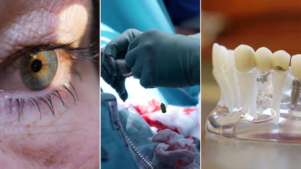 Ett öga, en operation och tandimplantat