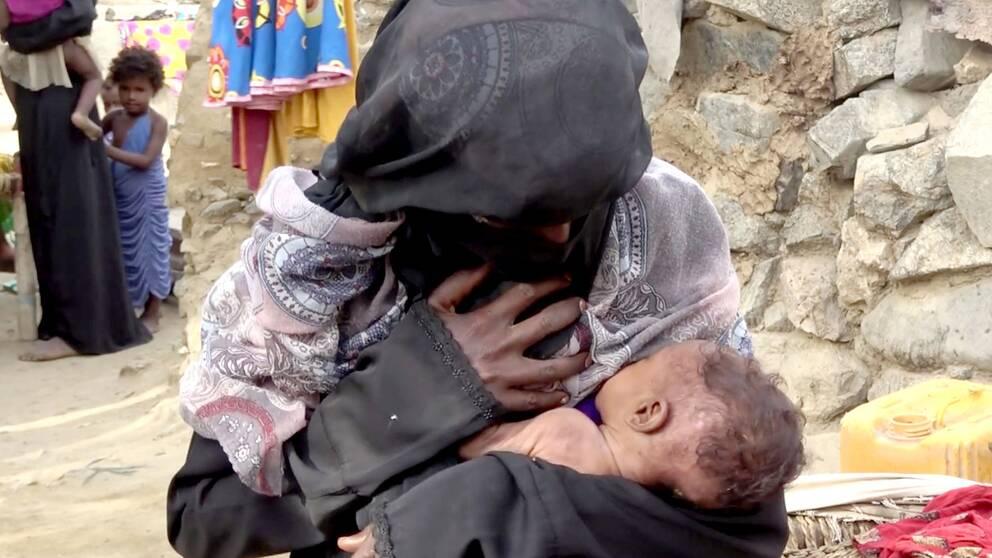 En kvinna ammar sitt undernärda barn.