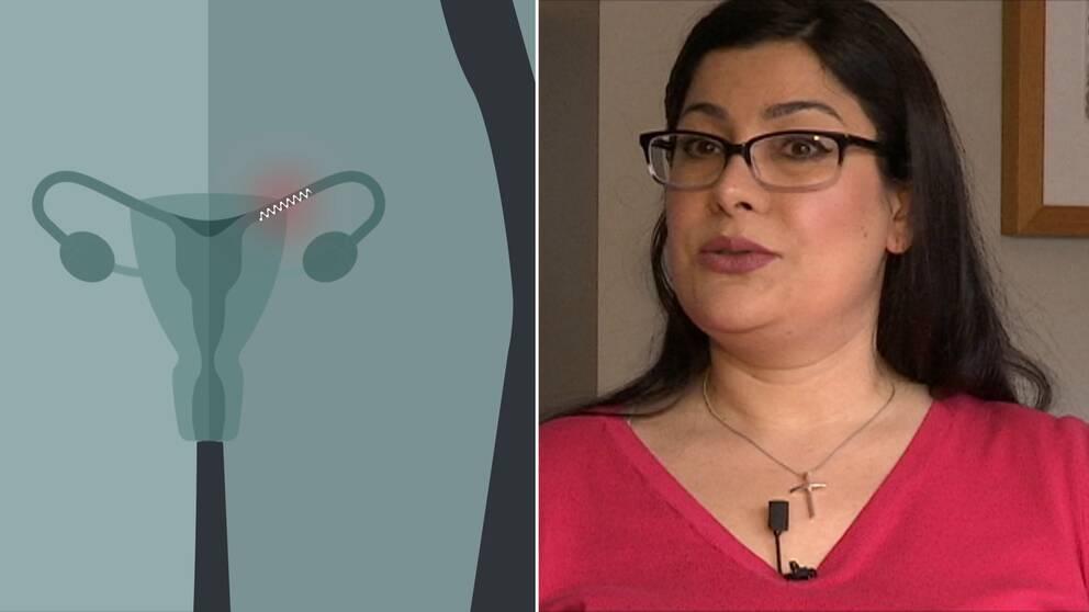 sterilisering kvinna biverkningar
