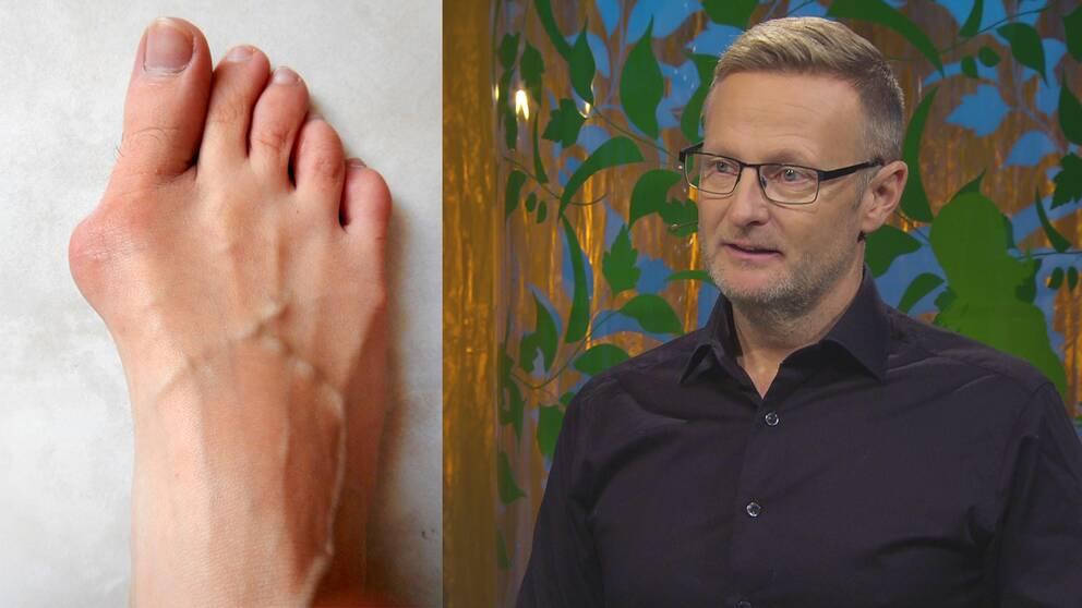 En fot drabbad av hallux valgus och sjukgymnasten Per Jonsson.