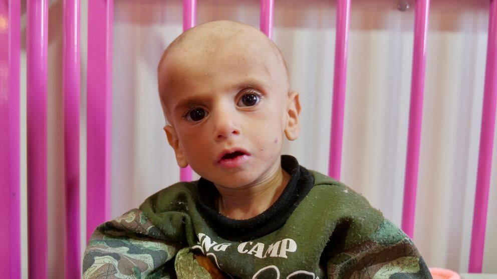 Ett av alla undernärda barn som nu får hjälp på ett sjukhus i norra Syrien efter terrorgruppen IS fall
