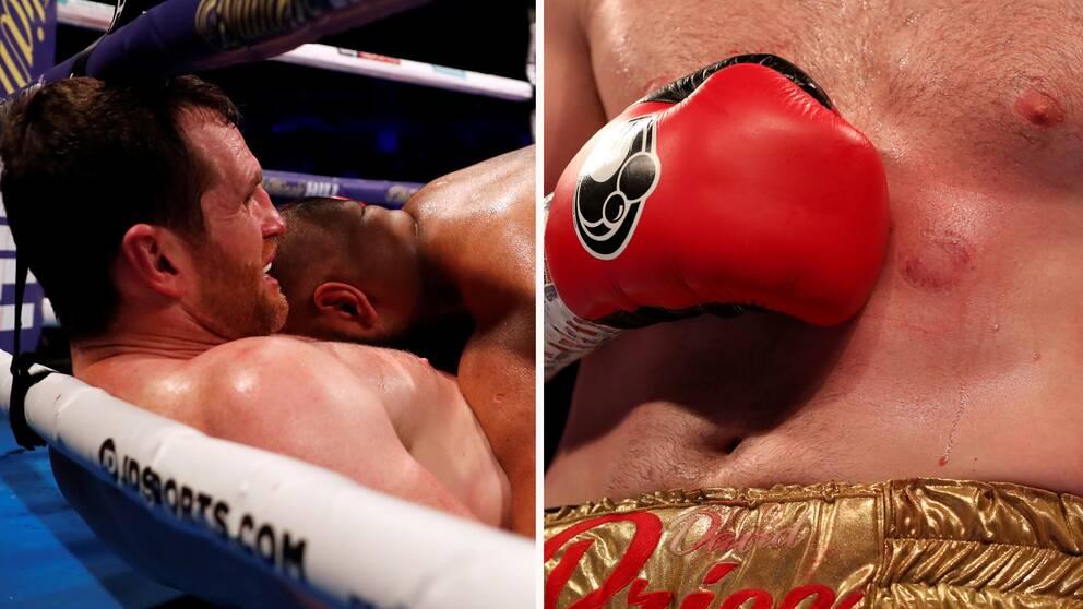 Boxaren David Price blev biten flera gånger av sin motståndare Kash Ali. Matchen bröts i femte ronden.