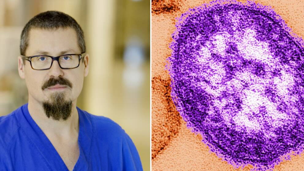 Infektionsläkaren Lars-Magnus Andersson. Mässlingsvirus.