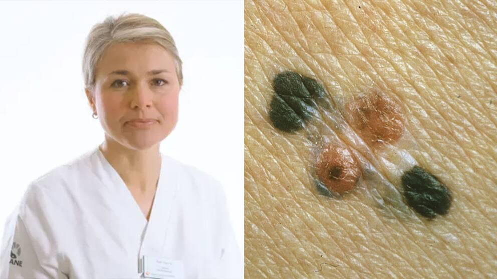 Åsa Ingvar och ett exempel på malingt melanom.