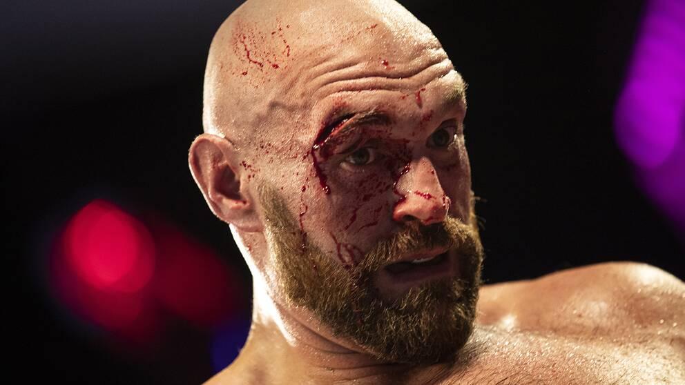 Otto Wallin slog upp ett stort sår ovanför Tyson Furys högra öga i september.
