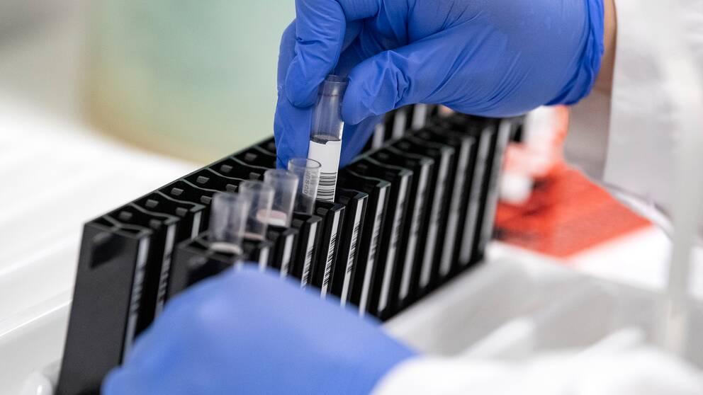 En handskbeklädd hand hanterar blodprovsrör i labratoriemiljö