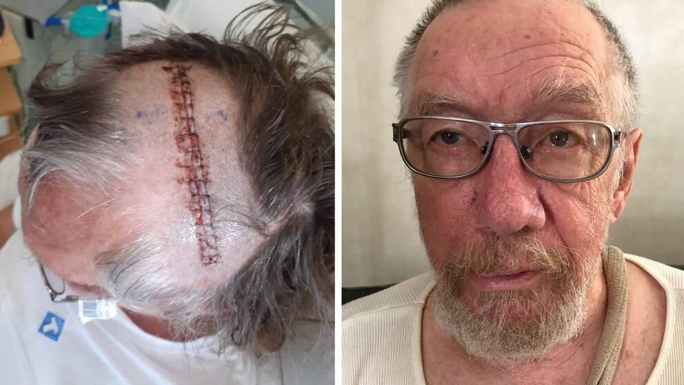 Jonny Frestadius gick tre år med en tumör i hjärnan innan den opererades.