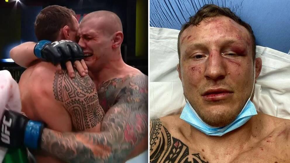 Jack Hermansson bröt en tå och fick en fraktur i ena ögonhålan i nattens tuffa fajt.
