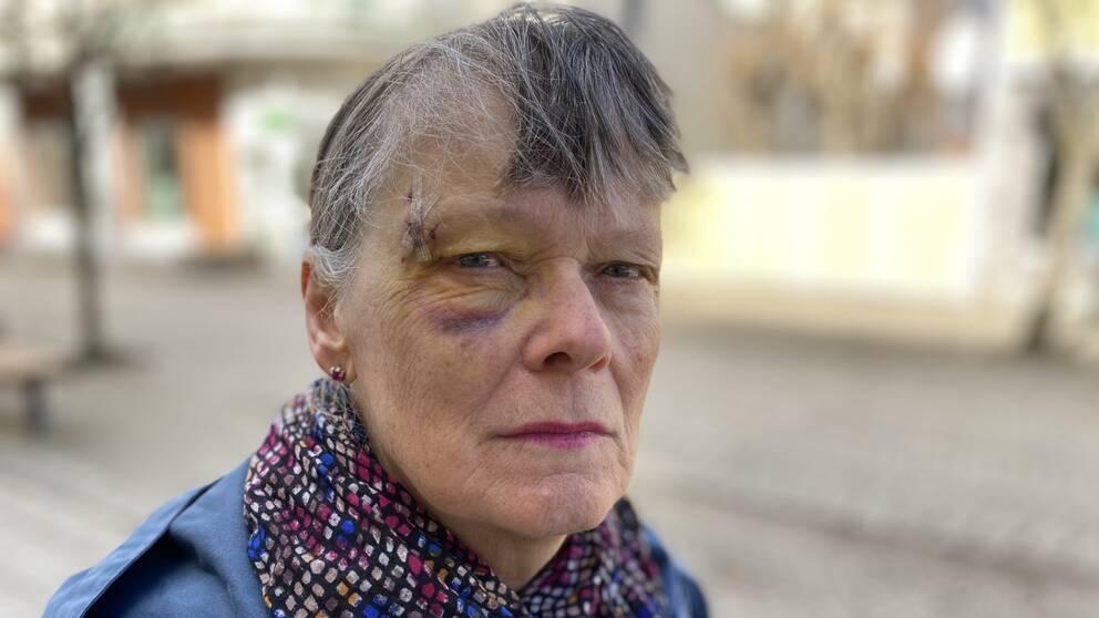 Närbild på Ingers ansikte som har sår och är gult och blått.