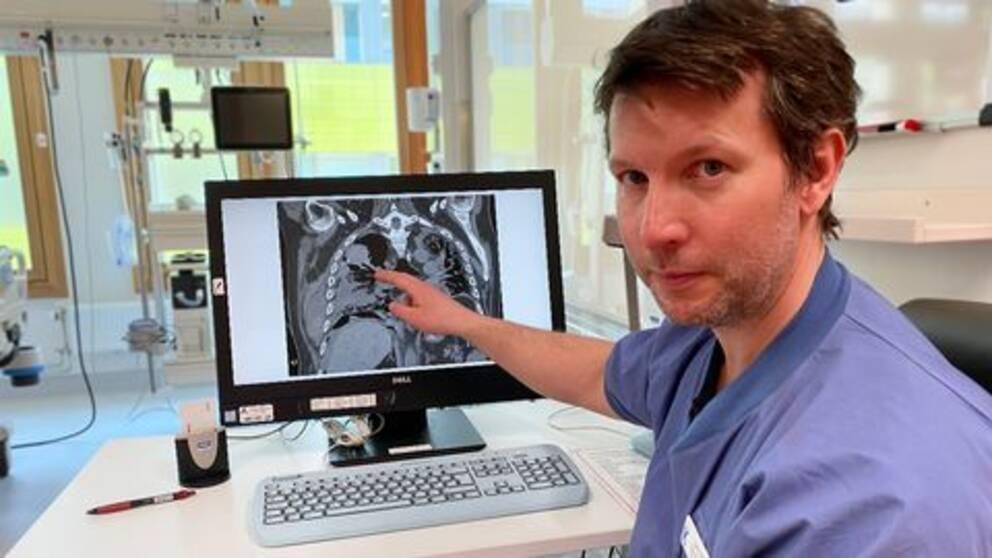 Läkaren Lars Falk pekar på en röntgenbild av ett par lungor. I bakgrunden syns sjukhusrummet.