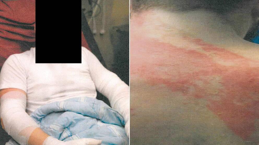 Misshandel på Saltviksanstalten