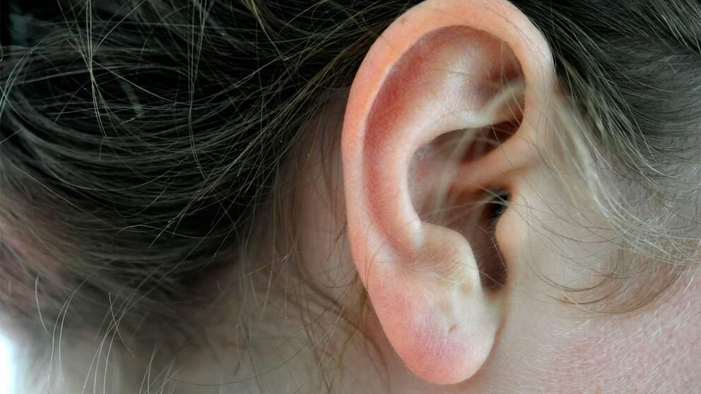 hörselnedsättning efter öroninflammation