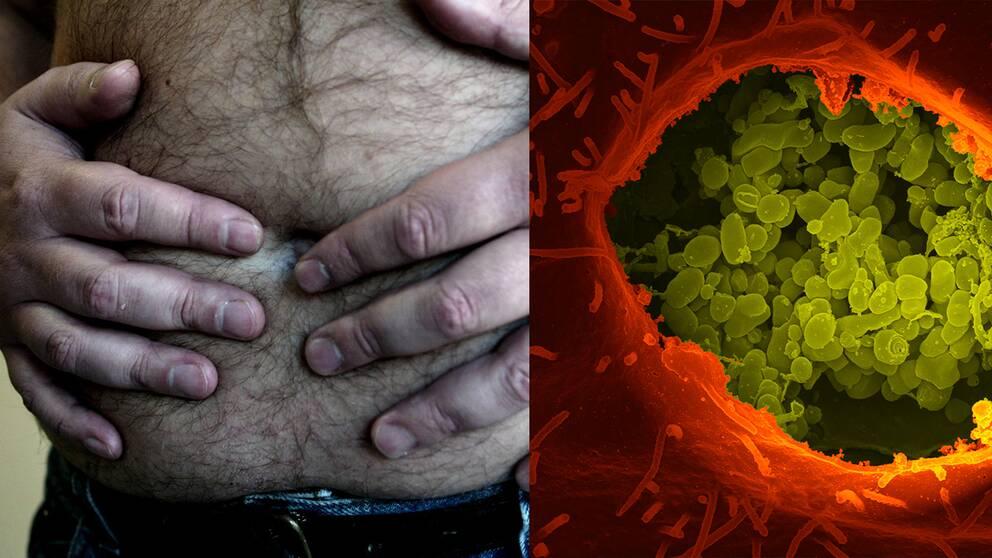Tarmbakterie bakom fetma