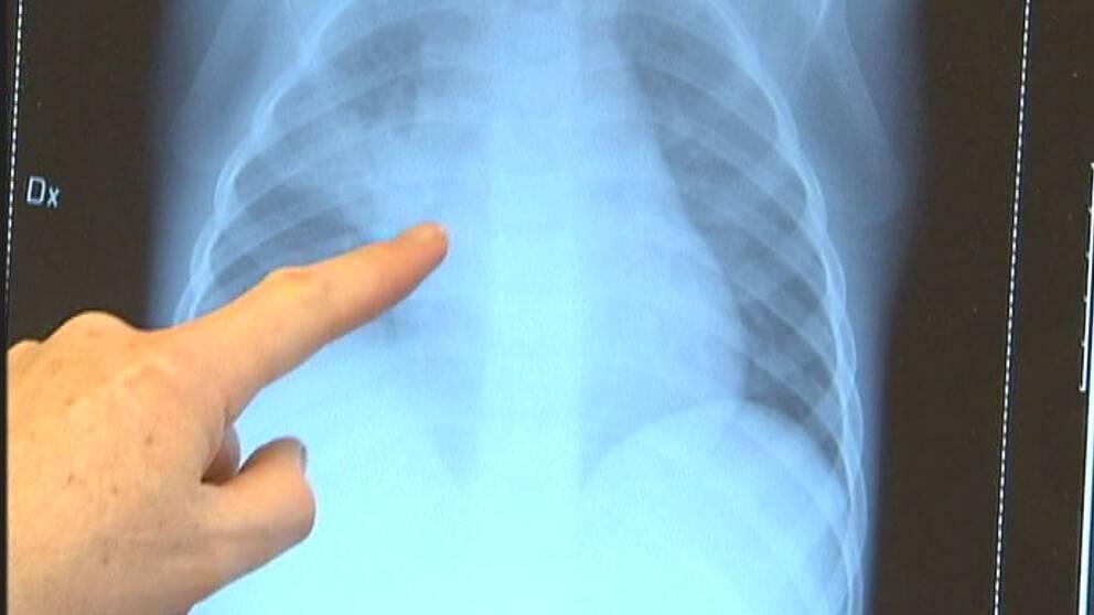 Sju barn misstanks ha tbc