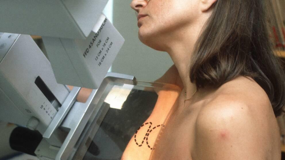 Mammografi